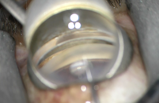 Figure 4: Air bubble in viscoelastic-cornea-gonioprism interface blocking view of blade and TM