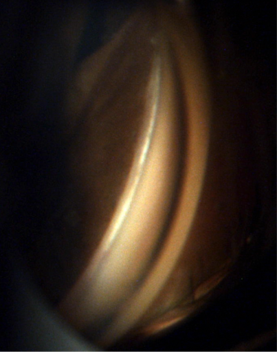 Figure 5: White appearing cleft noted after trabecular meshwork removal