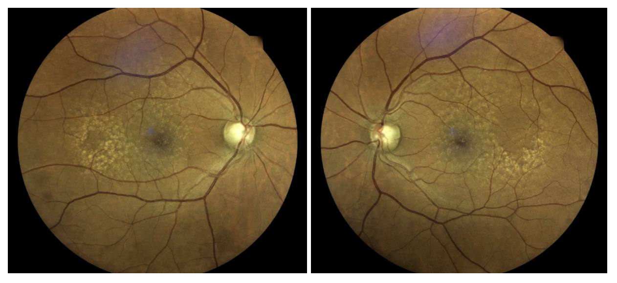 Fundus photography shows large disc size with suspiciously thin rim tissue for each optic nerve head.