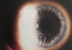 keratic-precipitates-red-eye.png
