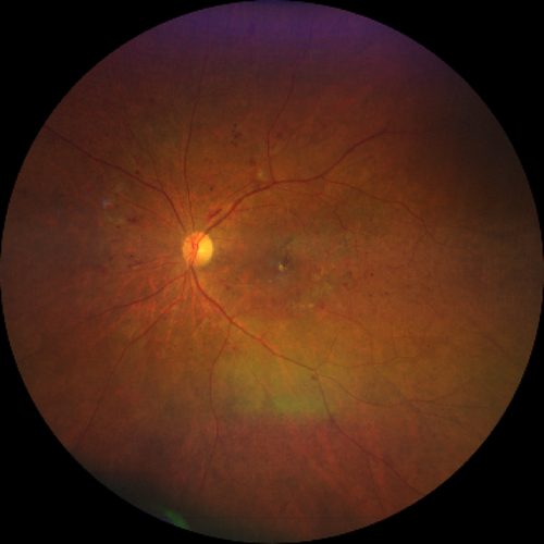 midperipheral-and-diabetic-retinopathy-taken-with-CLARUS-500.png