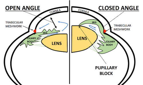 narrowing-angle-vs-small-lens.png
