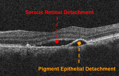 oct-of-central-serous-chorioretinopathy.png