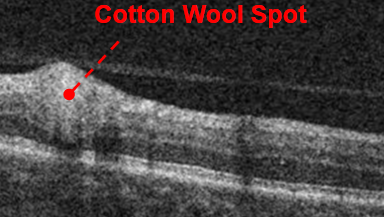 OCT of cotton wool spot