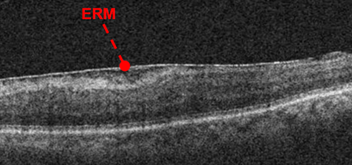 oct-of-epiretinal-membrane.png