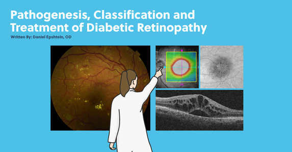 Pathogenesis, Classification, and Treatment of Diabetic Retinopathy