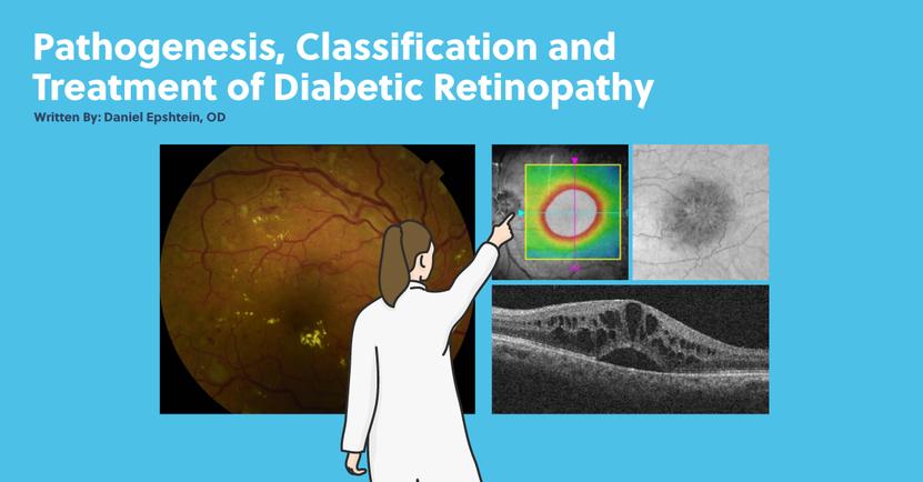 Pathogenesis, Classification, and Treatment of Diabetic Retinopathy