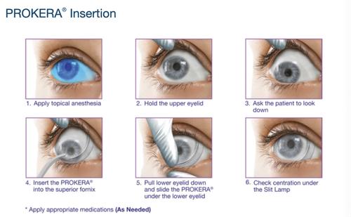 prokera insertion guide
