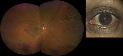 retinal-vasculitis-taken-with-CLARUS-500-768x349.png