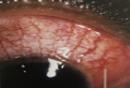 scleritis-red-eye.png