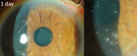 slit lamp photo of focal keratitis post smile.png