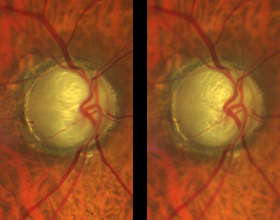 stereo-images-of-optic-nerve-from-clarus-500.png