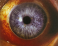 subconjunctival-hemorrhage-red-eye.png