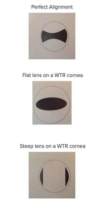 toric-lens-with-the-rule-astigmatism-rgp-troubleshooting.jpg