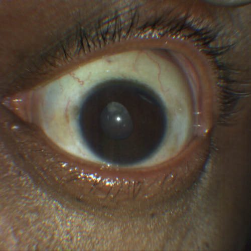 traumatic-cataract-and-iridodialysis-taken-with-CLARUS-500.png