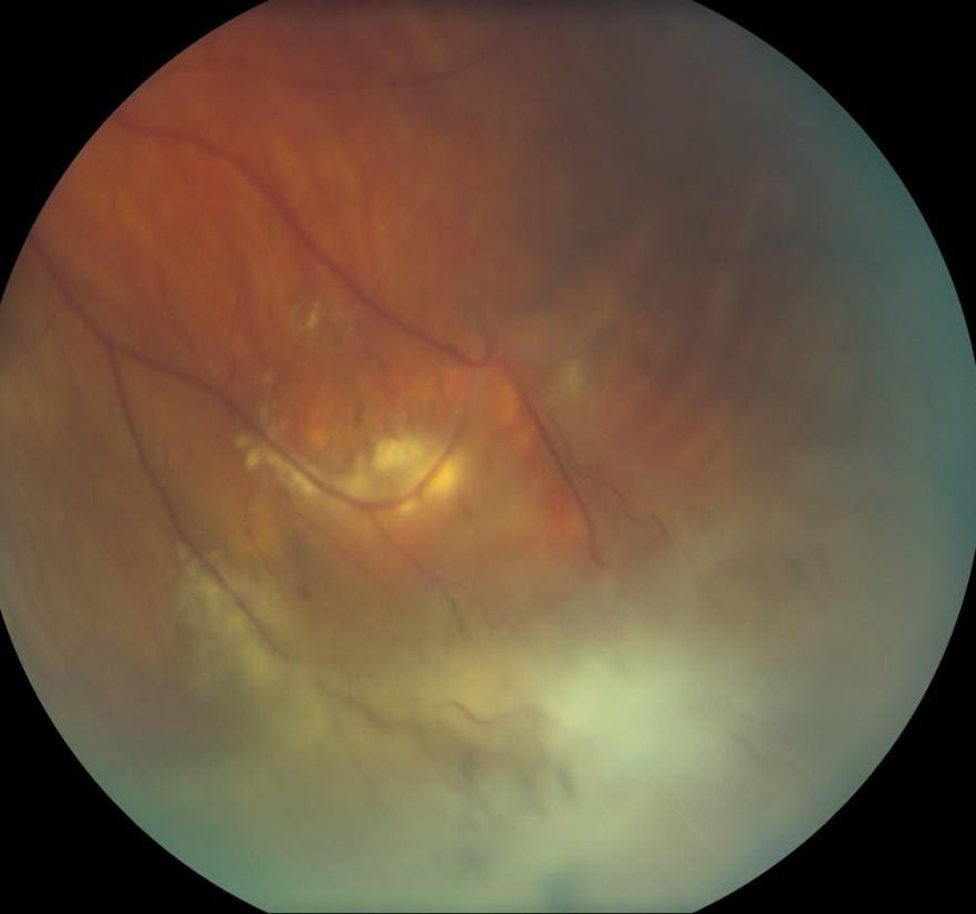 Figure 5: Presentation of intermediate uveitis with peripheral periphlebitis in a patient with multiple sclerosis.