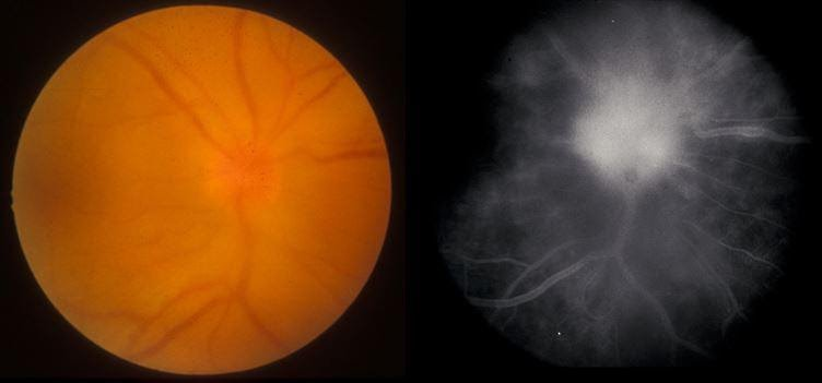 Figure 7: Presentation of posterior uveitis secondary to syphilis with optic disc swelling (left) associated with extensive leakage on angiography (right).