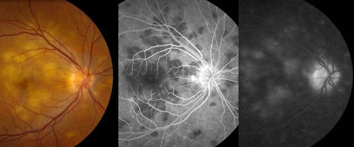 Figure 8: Presentation of posterior uveitis secondary to tuberculosis infection with posterior pole plaques. Angiography displays characteristic early hypofluorescence followed by late hyperfluorescence.